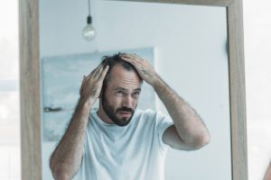 middle age hair loss