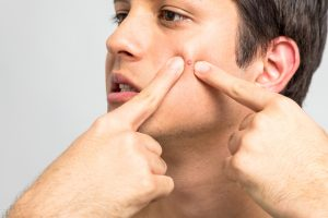 man popping pimple