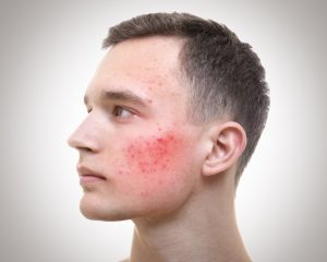 adult acne in men