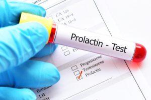 prolactin blood test