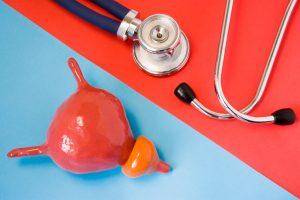 Gyanús prosztatagyulladás, 21 - Fizikoterápia
