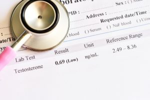 low testosterone level test result