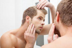 man and hair loss