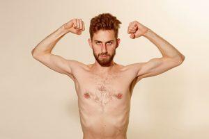 emaciated guy flexing biceps