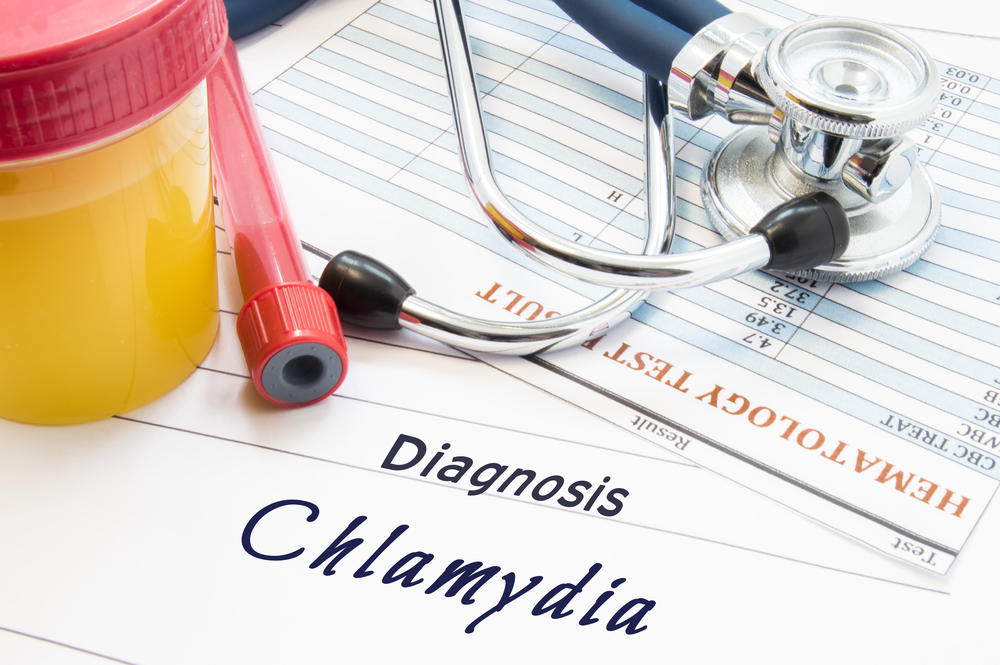 chlamydia diagnosis