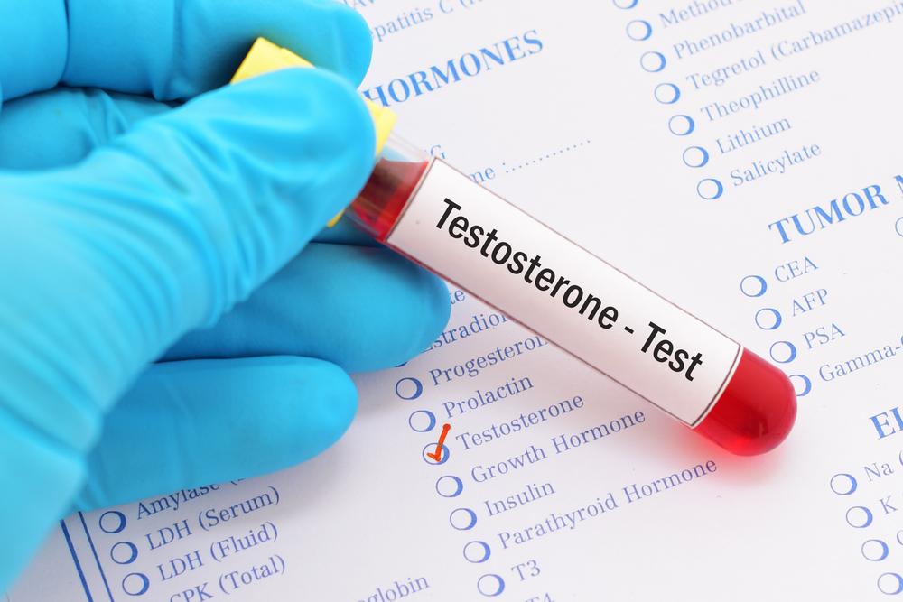 testosterone level blood test
