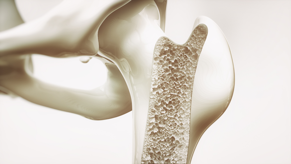 osteoporosis bone cross section