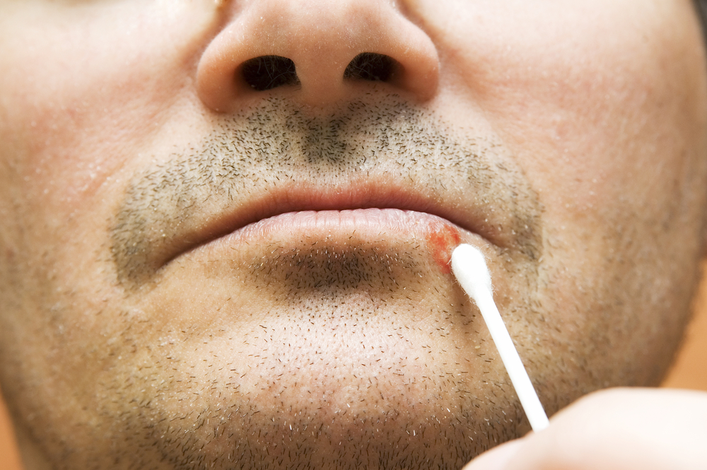 q-tip on mouth cold sore