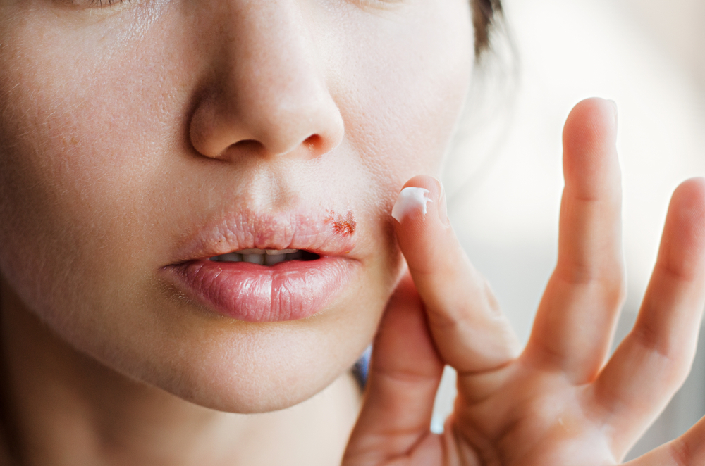 applying ointment to cold sore