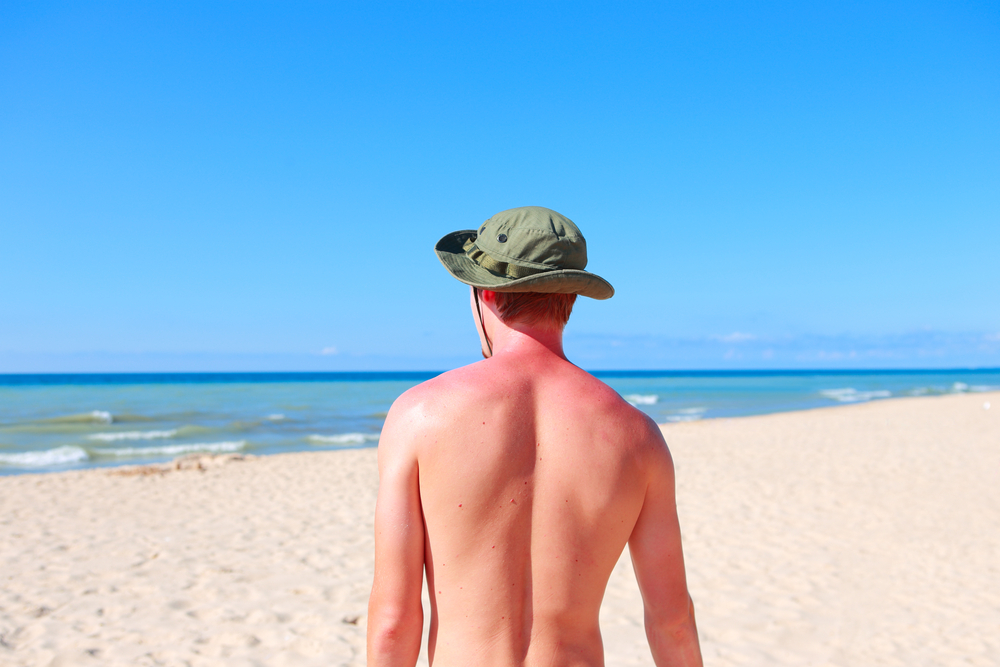 beach and sunburn