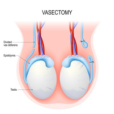 vasectomy diagram